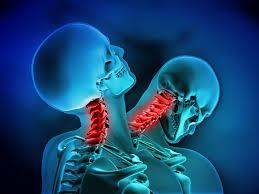 ムチウチ 頸椎